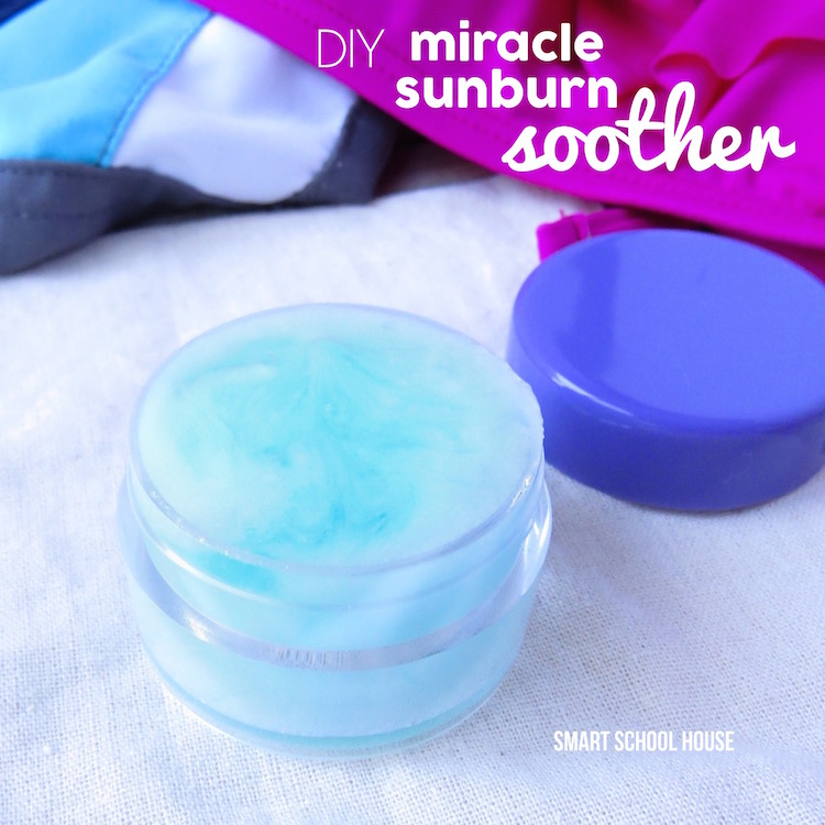 Miracle Sunburn Soother helps nourish, calm, cool, and protect sunburned skin. It smells wonderful, is so simple to make, and helps prevent peeling when used regularly.